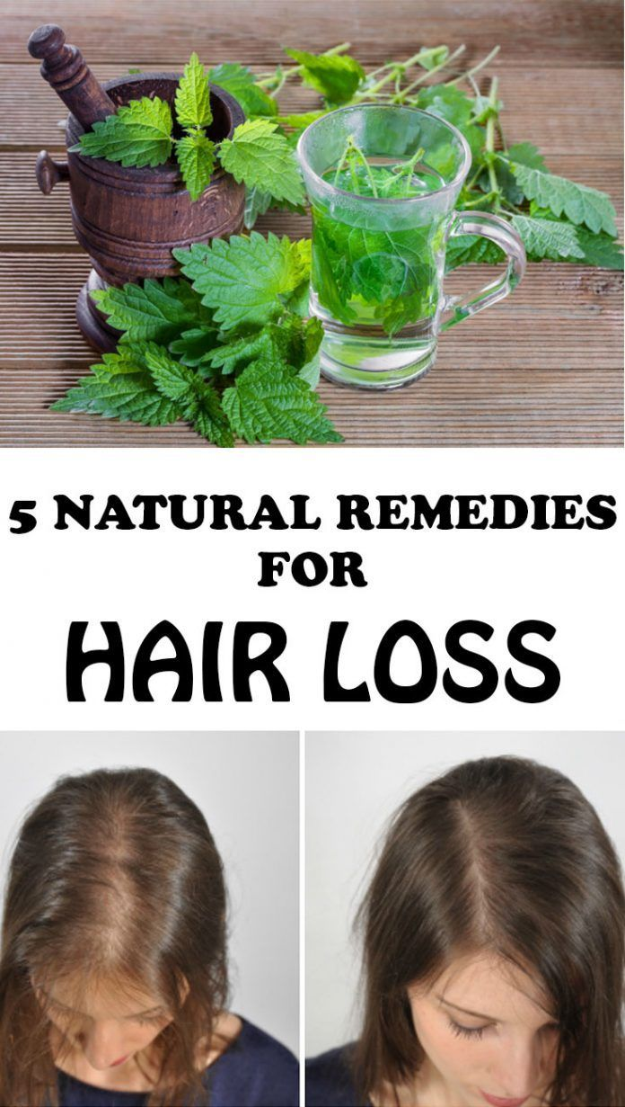 Natural Remedies for Hair Loss  Hair Loss Help  Pinterest  Hair
