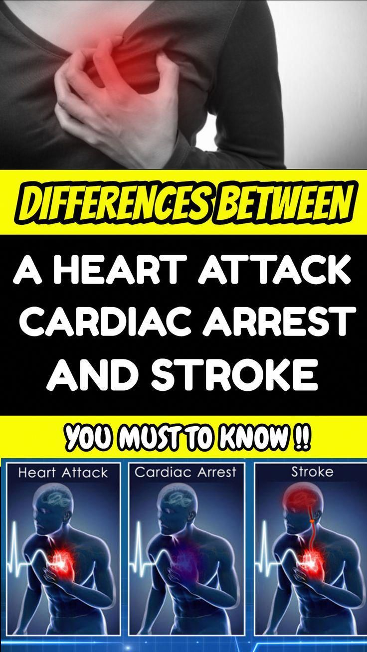 DIFFERENCES BETWEEN A HEART ATTACK CARDIAC ARREST AND STROKE THAT YOU MUST TO KNOW Heart Attack Cardiac Arrest and Stroke are three distinct terms Truth be told they all...