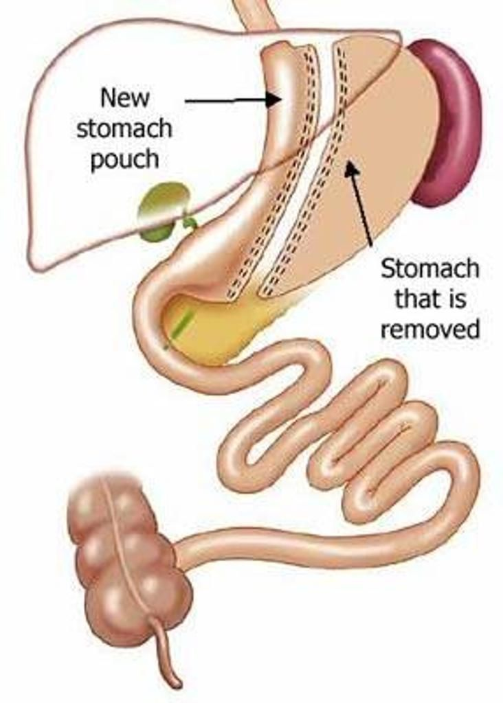 Sleeve gastrectomy is a bariatric surgery involving resection of the greater curvature of the fundus and body of the stomach to leave approximately 15% of the original gastric volume (60 to 100 cc), thus creating a restrictive physiology. The post surgical gastric pouch resembles a  banana-shape.  http://radiopaedia.org/articles/sleeve-gastrectomy-1