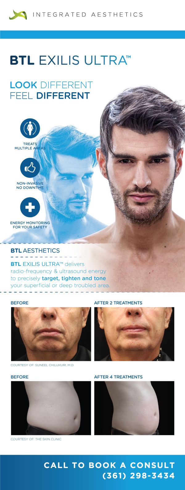 Houston Exilis Ultra 360 Skin Tightening Skin Reduce Wrinkles