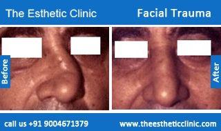Facial Trauma Surgery, Maxillofacial Surgery Before After Photos in Mumbai, India