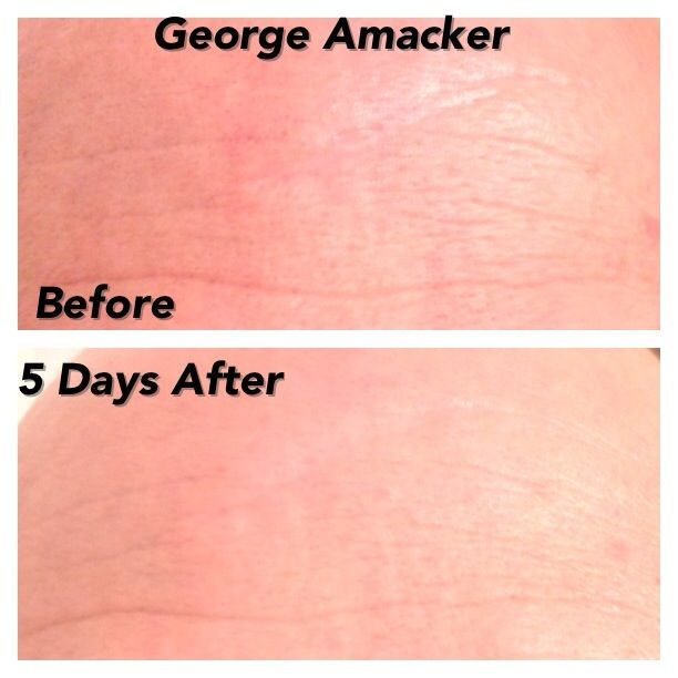 These are my boyfriends results after 5 days! He is 36 NeriumAD - medical release form sample