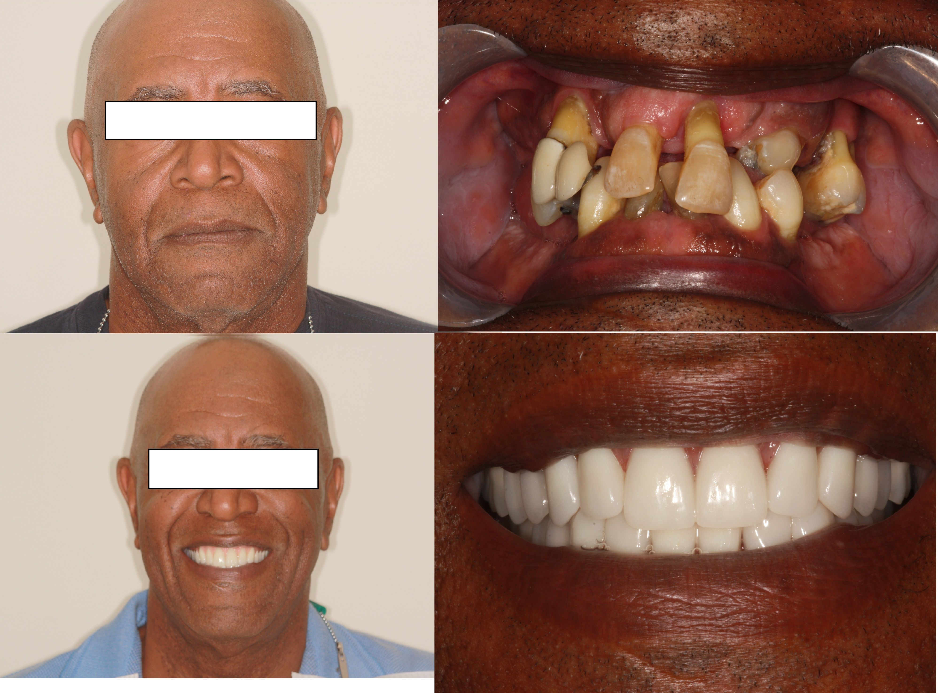 With The Years Of Neglect We Have To Removed The All Of The Patient Remaining Teeth And Replace It With Denture Denture Implants Denture Halloween Face Makeup