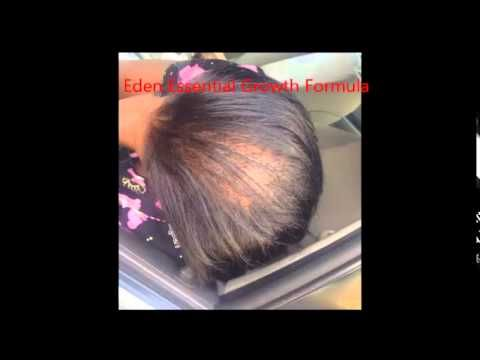 How To Grow Long Hair Edges And Bald Spots Back Super Fast 1 3 Inches In 30 Days Grow Long Hair Castor Oil For Hair Growth Castor Oil For Hair