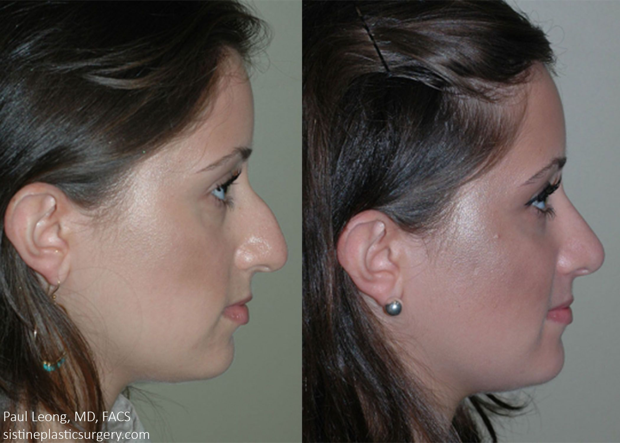 Pittsburgh facial plastic surgery