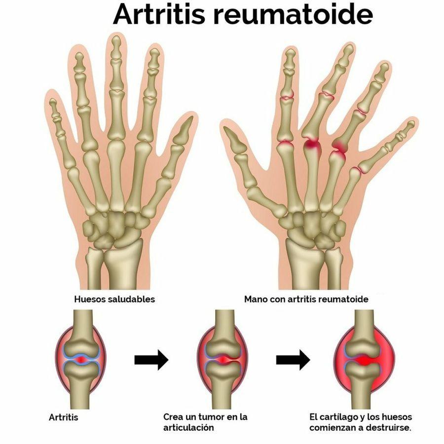 Información y remedios caseros para la artritis reumatoide | Pinterest