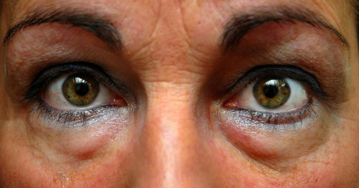 bolsas ojos hinchadas causas
