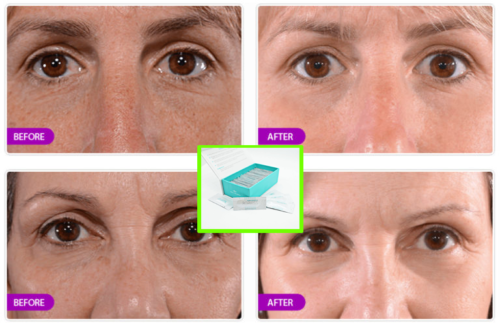 Original-Anti-Aging-Anti-Wrinkle-Cream-Face-Lift-Eye-Bag-Removal
