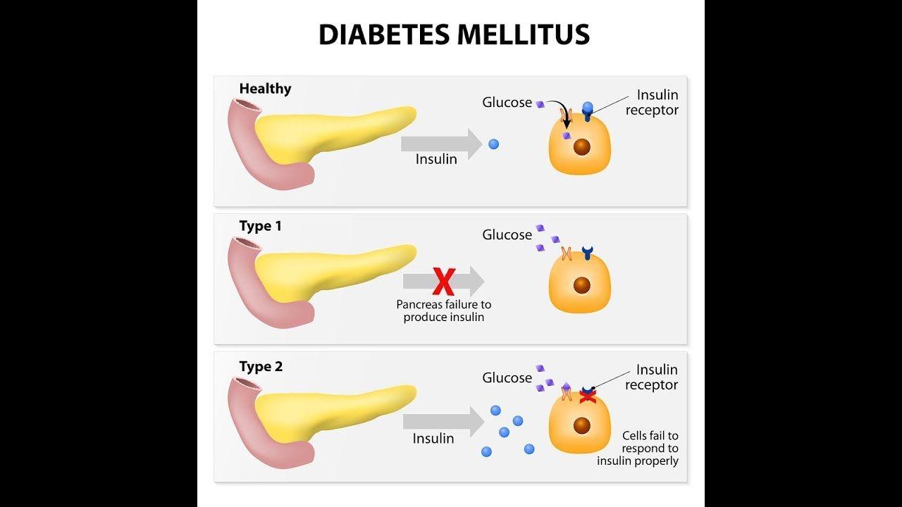 síntomas de diabetes blutzuckerwerte