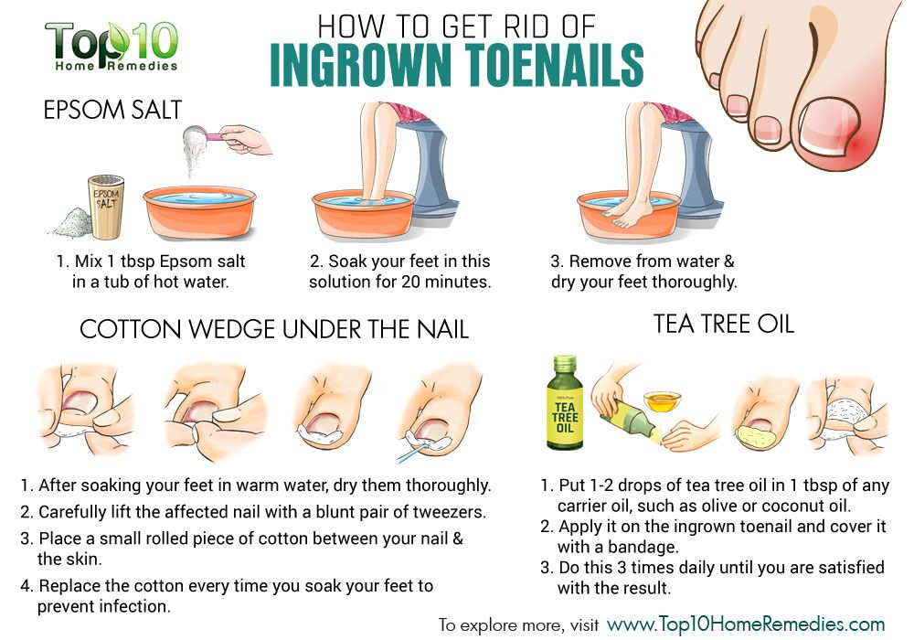 Home Remedies Of Ingrown Toenails Ingrown Toe Nail