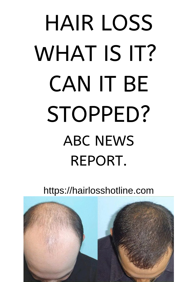 hair #hairloss #baldness #men Hair loss  Check out this article in