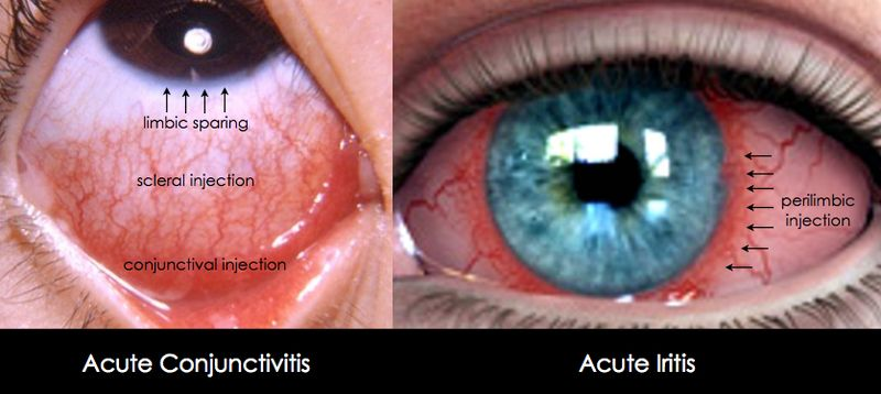 Allergic Conjunctivitis Vs Bacterial Conjunctivitis