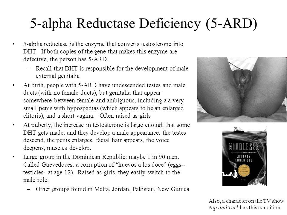 Image Result For 5 Alpha Reductase Deficiency