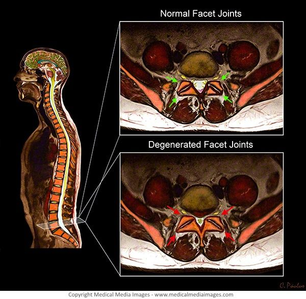 Pin By Diane Wright On Chronic Pain Spinal Stenosis