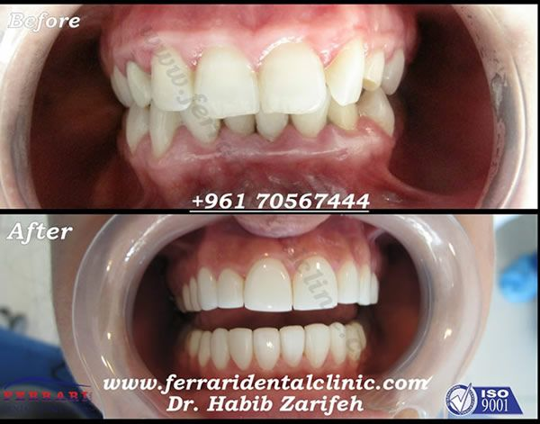 Hollywood Smile. The number one Hollywood smile dentist and clinic in Lebanon by Ferrari dental clinic ISO 9001 Hollywood smile Beirut dentist Dr.Habib Zarifeh. Call us now: +96170567444 Http://www.facebook.com/HollywoodsmileLebanon http://www.twitter.com/Hollywoodsmilec Http://www.hollywoodsmilelebanonbeirut.com dentist,dental clinic,veneers,lumineers,teeth whitening,laser bleaching,Laser dentistry,hospital,Beirut,Lebanon,gum,plastic surgery,gummy smile,cost,price,best,perfect teeth,