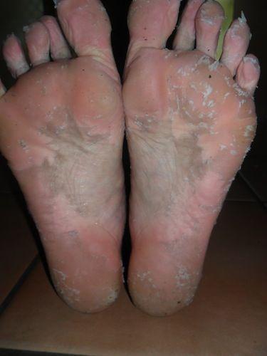 how to peel dead skin off feet
