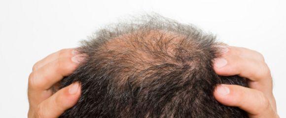 calvizie   Caduta dei capelli, Capelli