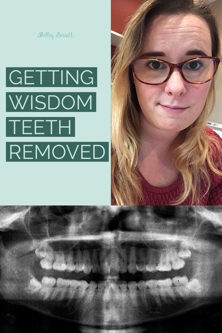 Getting my wisdom teeth removed shelley bassett wisdom