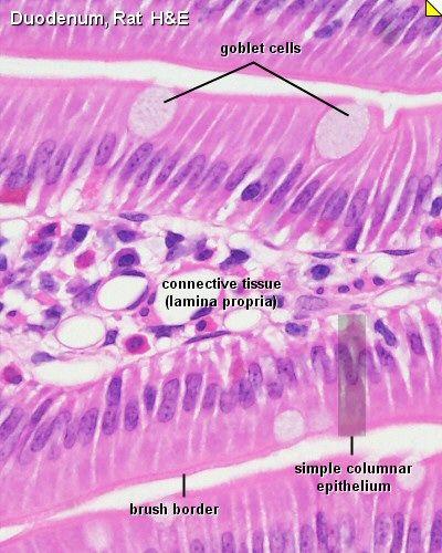 Histology - Small Intestine - Duodenum - Mucosa... the ...