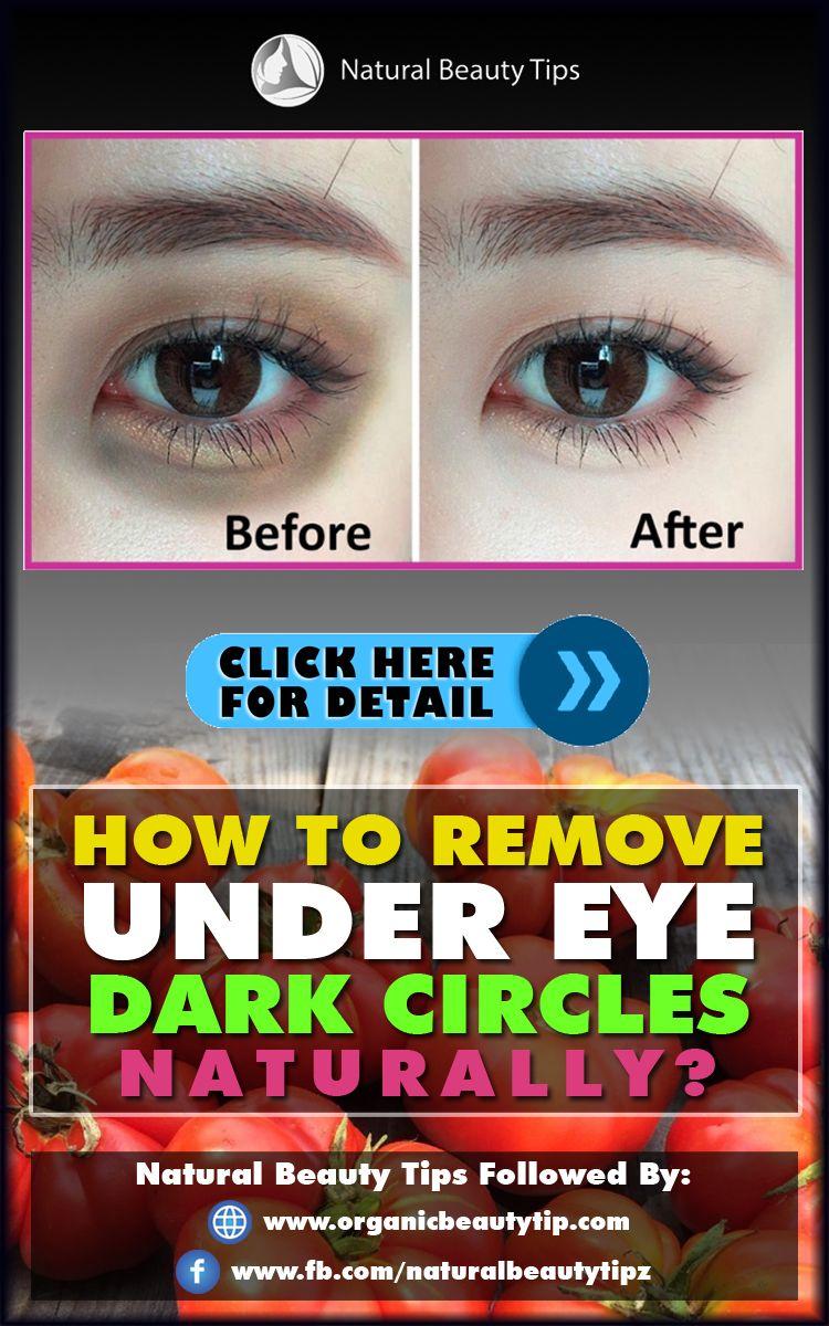 HOW TO REMOVE UNDER EYE DARK CIRCLES NATURALLY? | Dark ...
