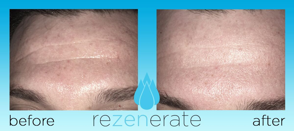 Before & After Rezenerate on Forehead wrinkles  | REZENERATE