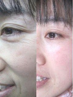 Stop Aging Skin