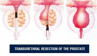 green light laser prostate surgery forum