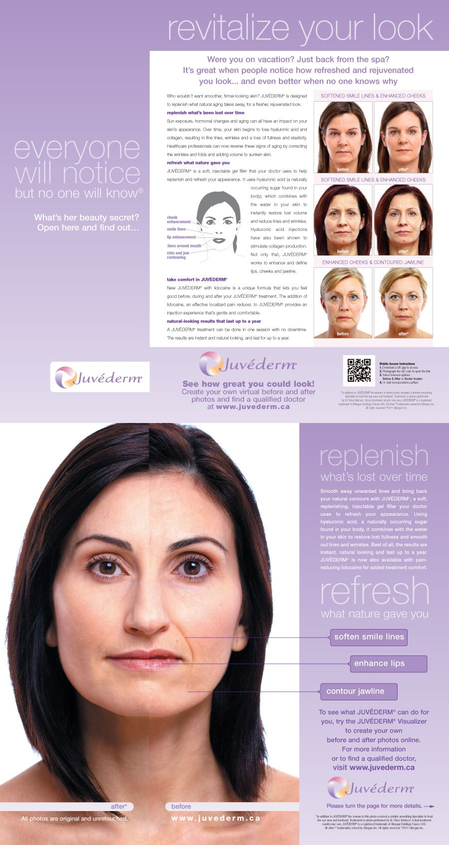 Juvederm Can Be Injected Under The Wrinkle To Plump And Fill It Creating Smooth Skin It Actually Looks Like Dermal Fillers Face Fillers Plastic Surgery Facts