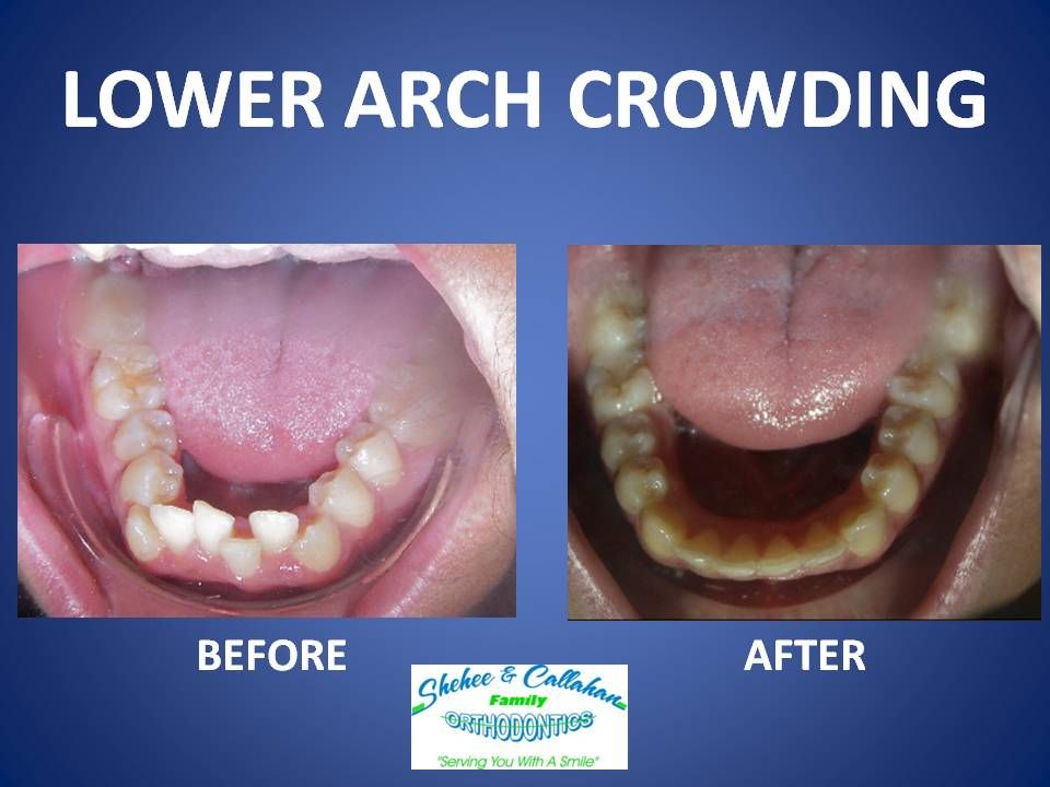 Braces Before And After Lower Arch Crowding Teeth Braces Invisalign Braces Braces