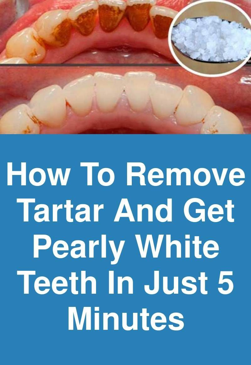 efce1e2a39e23f71cf006b9764c9dd45 - How To Get Rid Of Black Tartar On Teeth