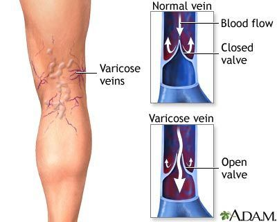 What Causes A Varicose Vein