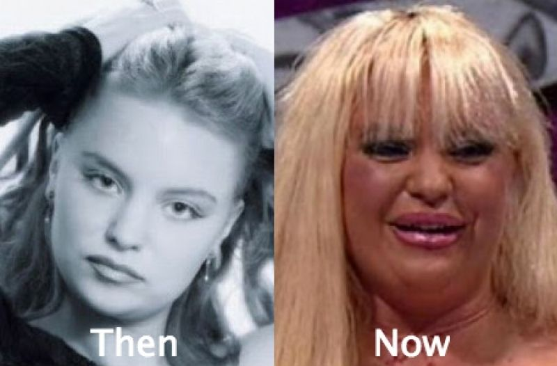 Celebrity Plastic Surgery Gone Wrong Before And After ...