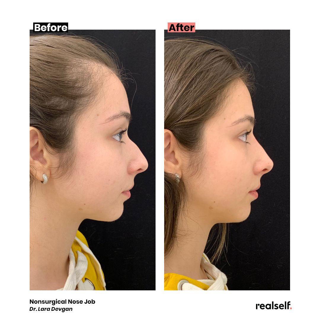 Ask dr devgan nonsurgical nose jobs nose job