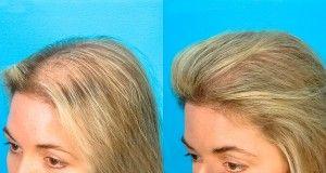Traitement pour accelerer la pousse des cheveux