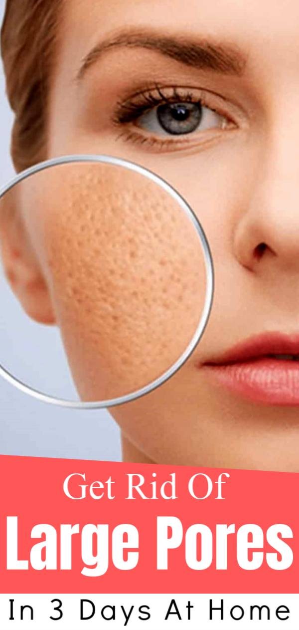 Get rid of large pores in 3 days at home Large pores
