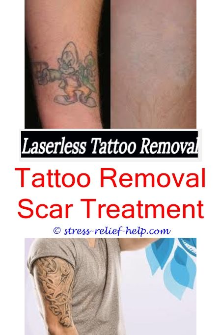 Skin Tattoo Removal How Many Sessions To Get Tattoo Removed Can You Remove Tattoo Ink From Clothes Tattoo Removal Prices Tattoo Removal Fresno Ta