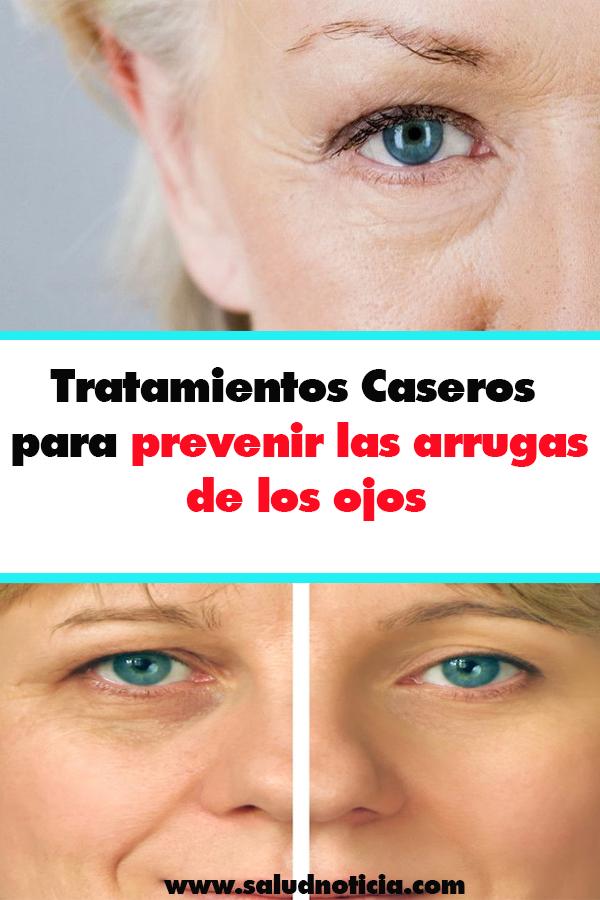 Tratamientos Caseros para prevenir las arrugas de los ojos ...