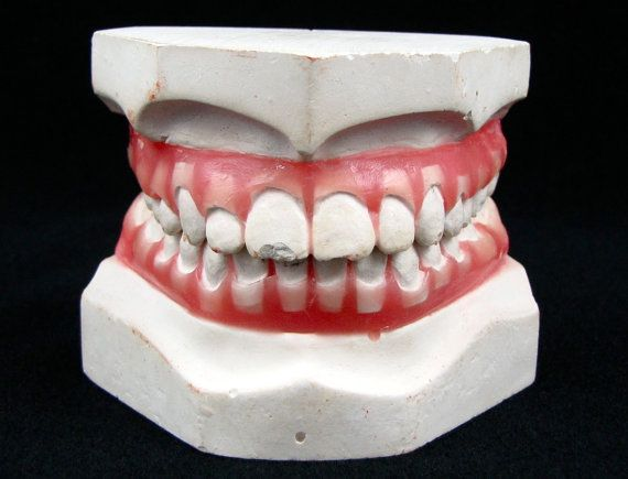 A Mouthful - Vintage Plaster Dental Mold with Realistic Pink Gums