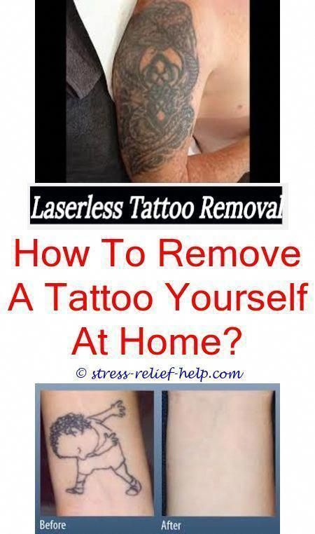 the best tattoo removal is it safe to get a tattoo removed ...