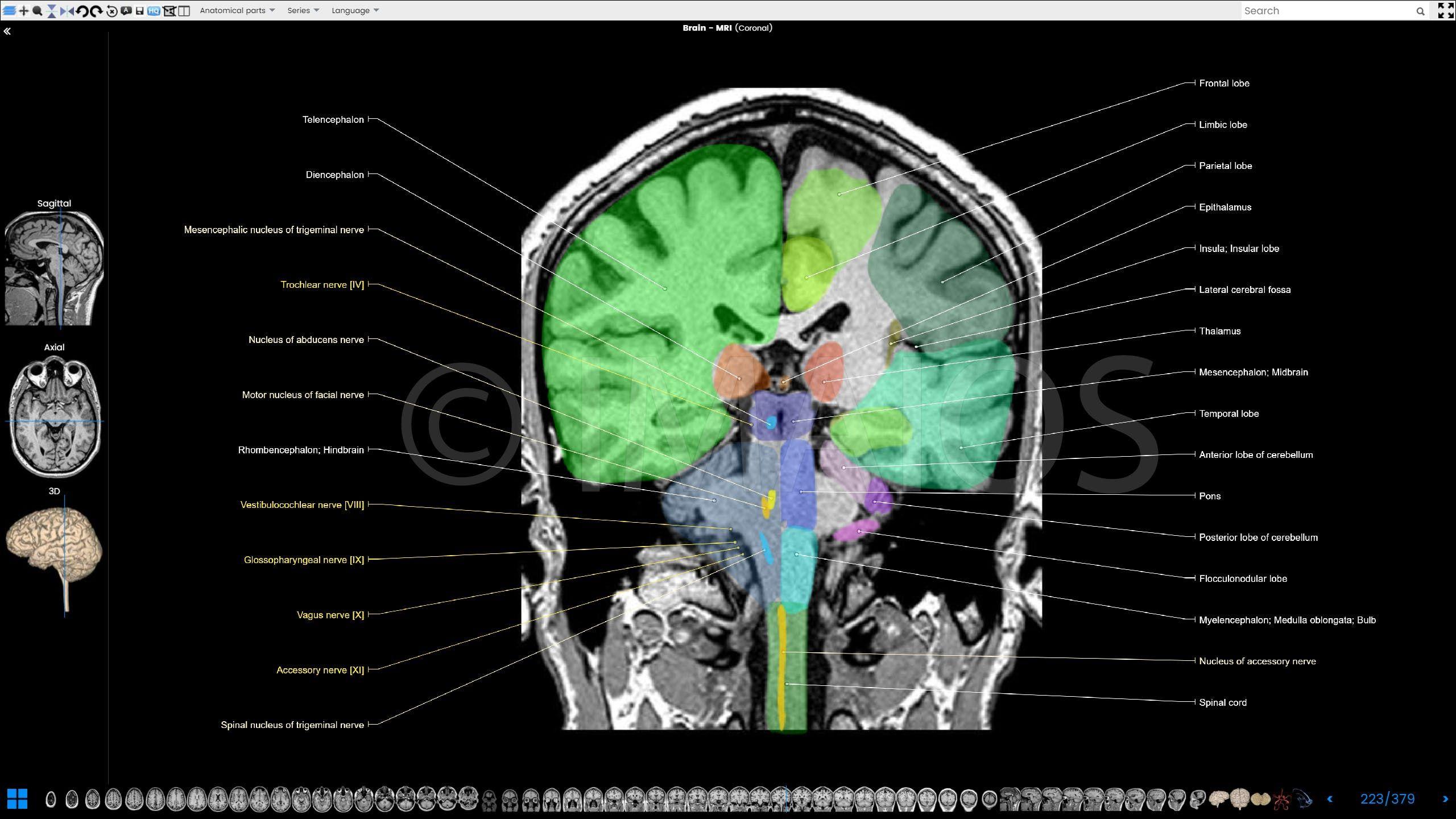 anatomy of the encephalon in mri (axial, coronal and ... mri brain spine diagram