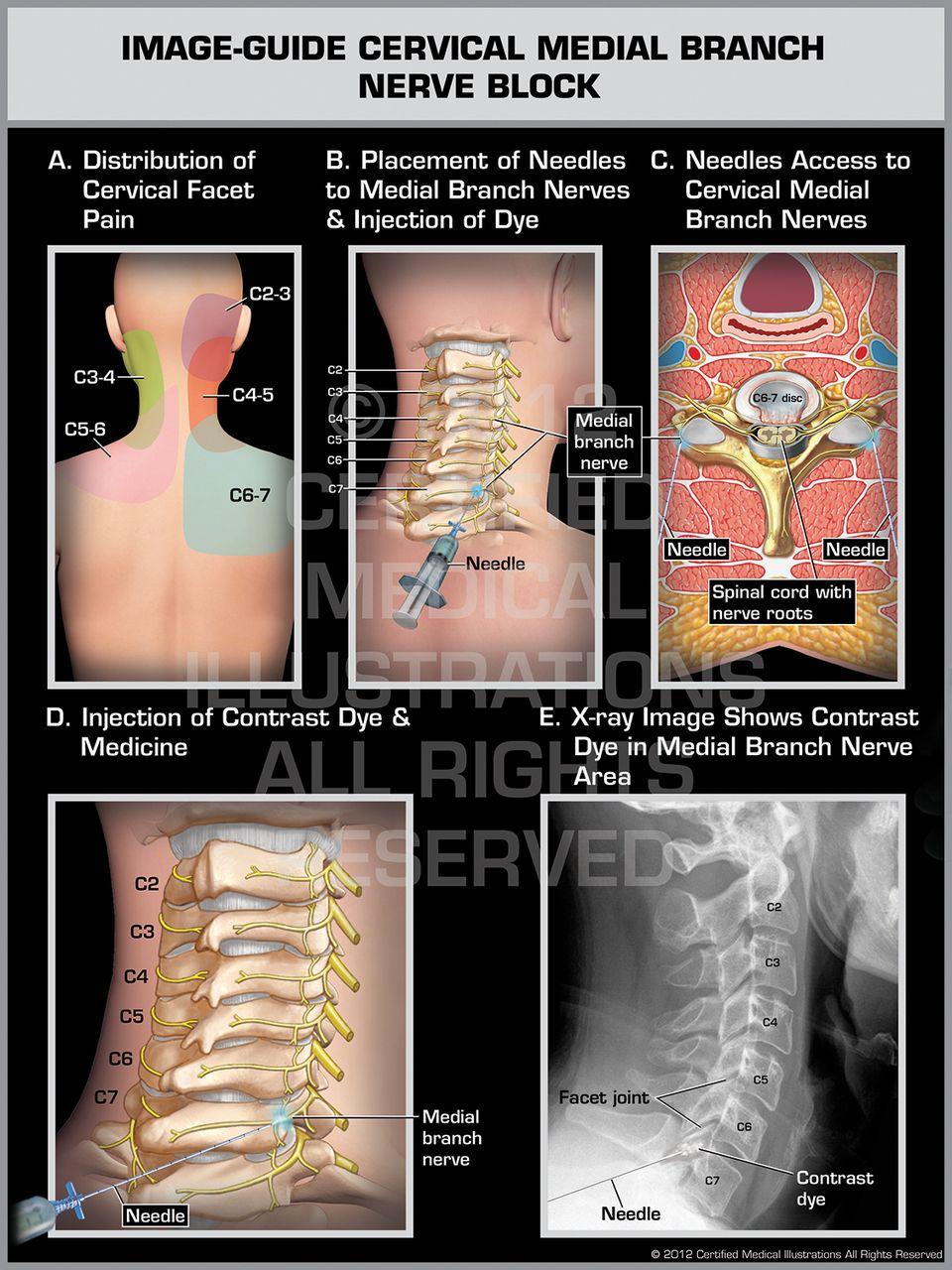 Image Guide Cervical Medial Branch Nerve Block Female Print