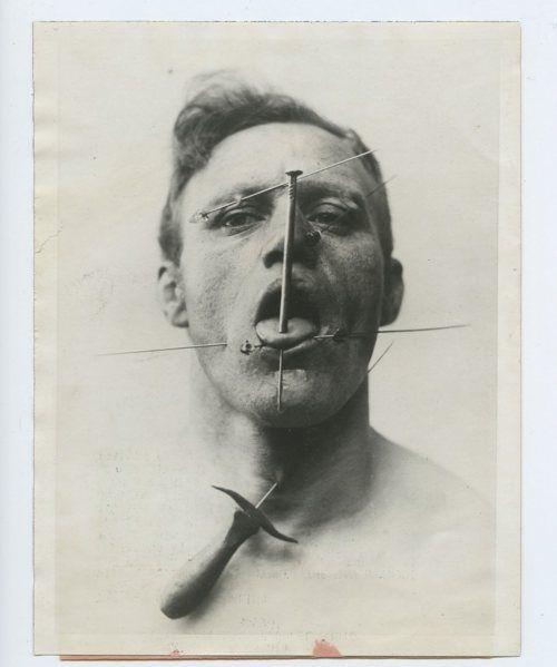 Vintage human pincushion