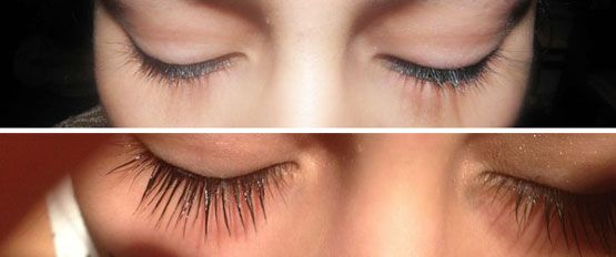 latisse makes possible the increasing the lash growth faster than ...