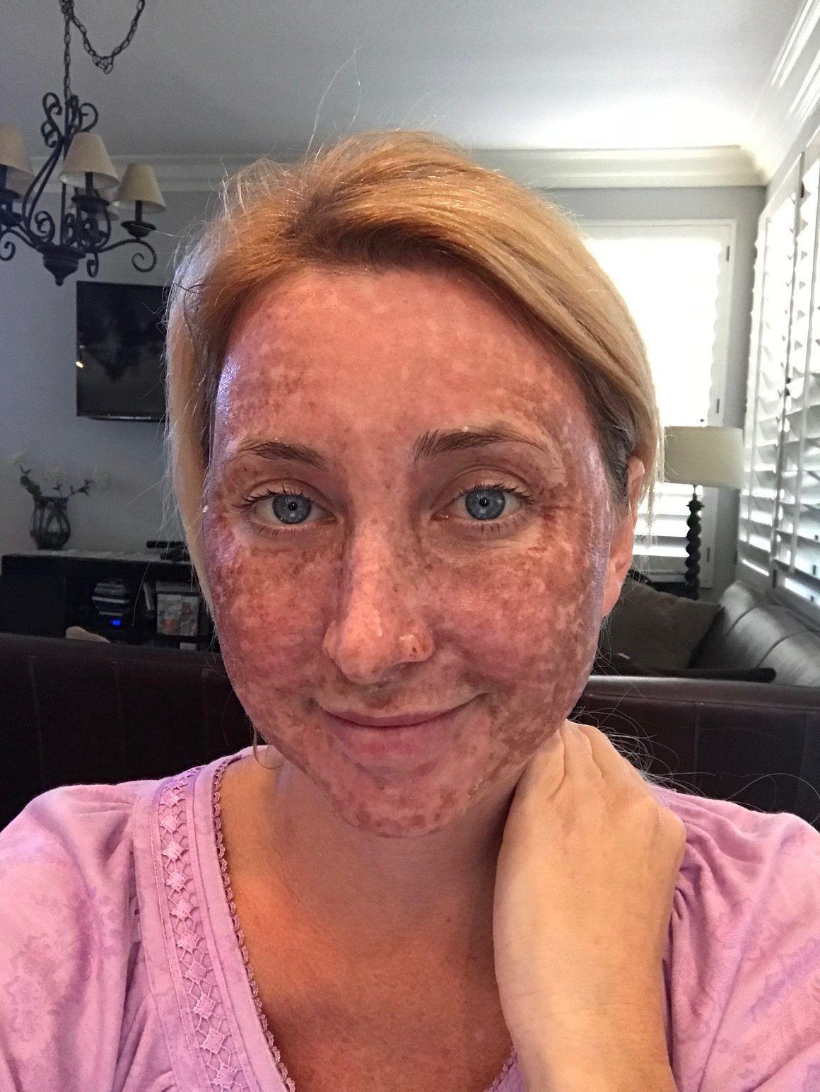 Darkening Of Skin After A C02 Laser At Cosmeticare In 2020 Laser Facial Laser Treatment Face Laser Peel