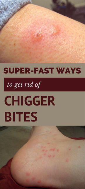 effbcf65fc43d8a511357c04aafb5f1f - How To Get Rid Of Sand Flea Bites Fast