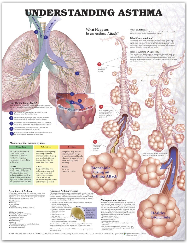 Understanding Asthma Chart Poster