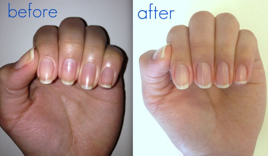 One of the pitfalls to polishing your nails is the nasty yellow staining, but have no fear! Removing & preventing your nails from staining is easy & cheap!