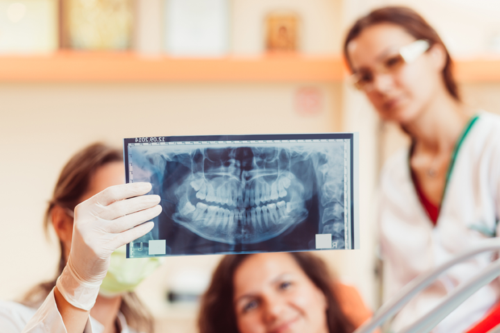 What To Expect From Immediate Dental Implant Placement