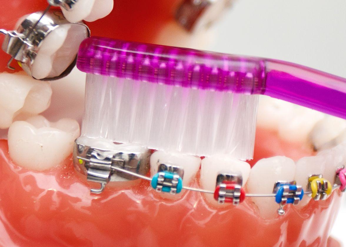 Orthodontist Henderson orthodontisthenderson