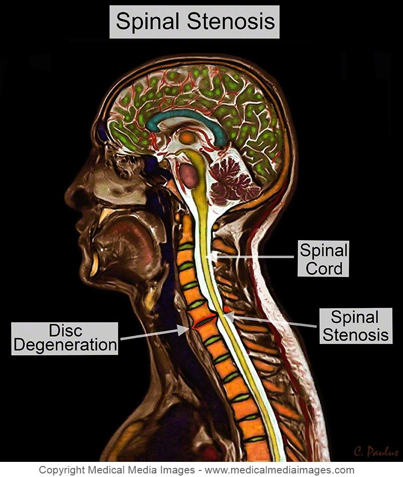 Pin de Medical Media Images en Spinal Stenosis shown on Color MRI ...